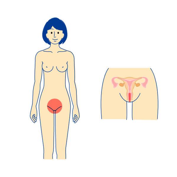 細菌性膣炎 女性