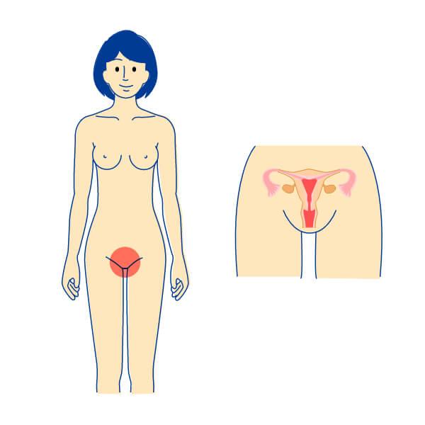 トリコモナス感染症 女性